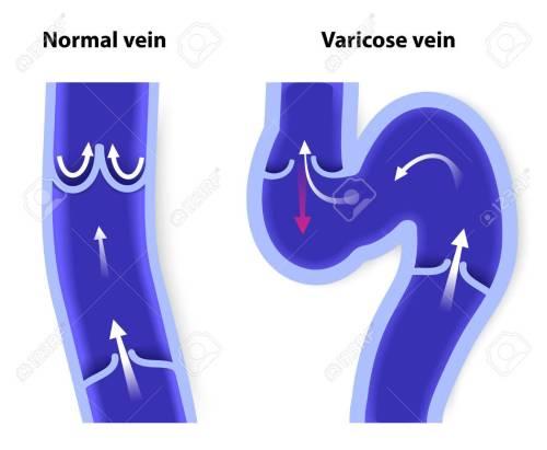 small resolution of healthy vein and varicose vein human veins vector diagram stock vector 30673881