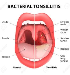 tonsillitis bacterial angina pharyngitis and tonsillitis infection of tonsils caused by virus or [ 1300 x 1300 Pixel ]