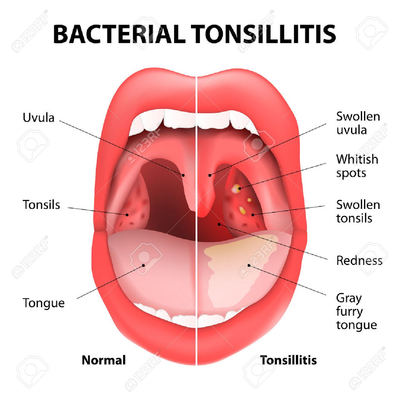 hight resolution of tonsillitis bacterial angina pharyngitis and tonsillitis infection of tonsils caused by virus or