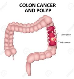 colon cancer and colon polyps polyps have the potential to turn into cancer if they [ 1300 x 1300 Pixel ]