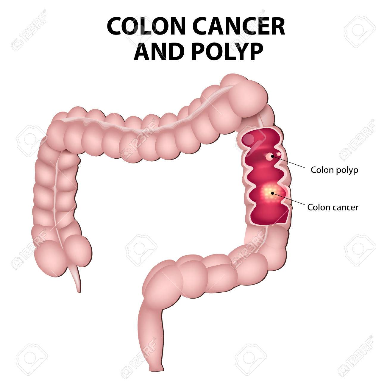 hight resolution of colon cancer and colon polyps polyps have the potential to turn into cancer if they