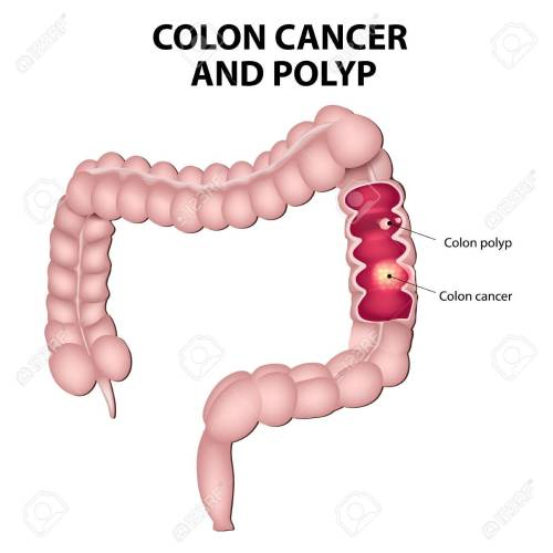 small resolution of colon cancer and colon polyps polyps have the potential to turn into cancer if they