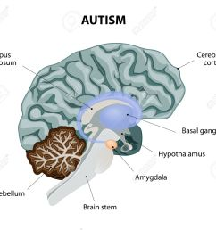 parts of the brain affected by autism vector diagram stock vector 34824339 [ 1300 x 1141 Pixel ]
