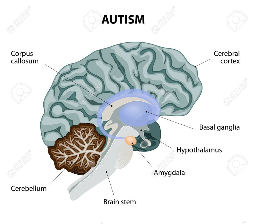 medium resolution of parts of the brain affected by autism vector diagram stock vector 34824339