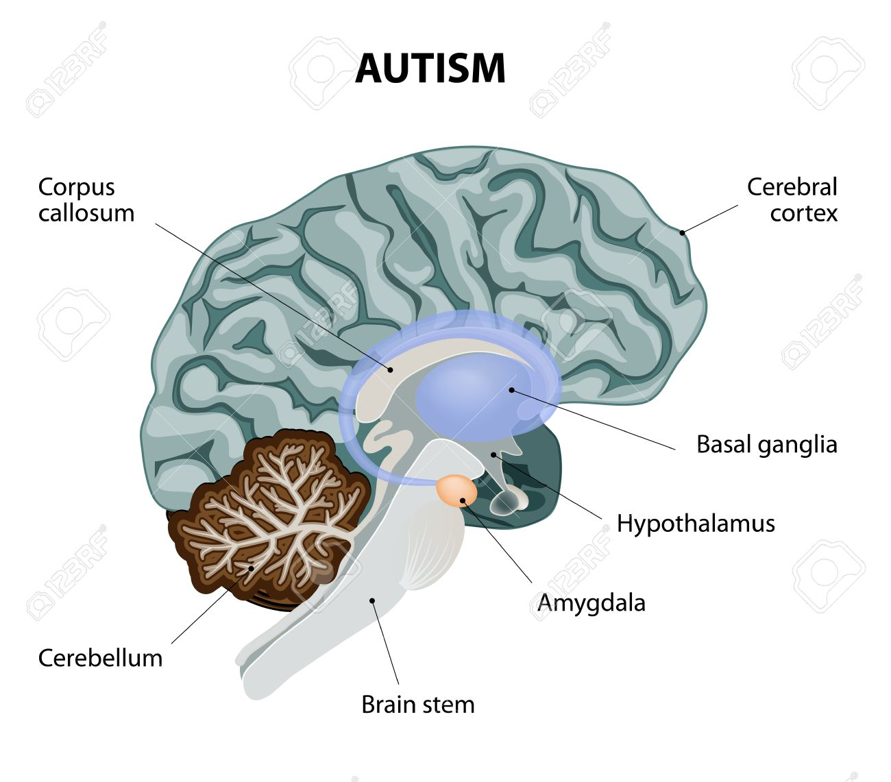 hight resolution of parts of the brain affected by autism vector diagram stock vector 34824339
