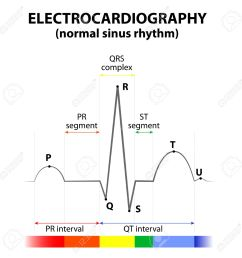 ecg of a heart in normal sinus rhythm schematic representation wave and segment names [ 1300 x 1300 Pixel ]