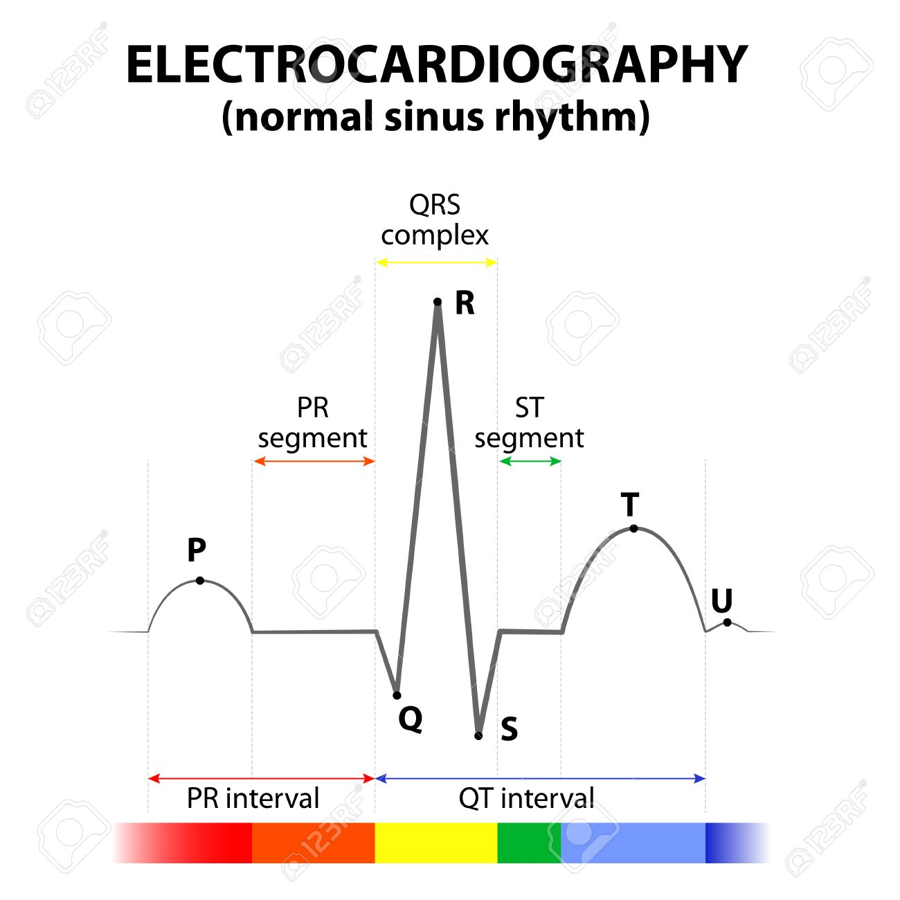 hight resolution of ecg of a heart in normal sinus rhythm schematic representation wave and segment names
