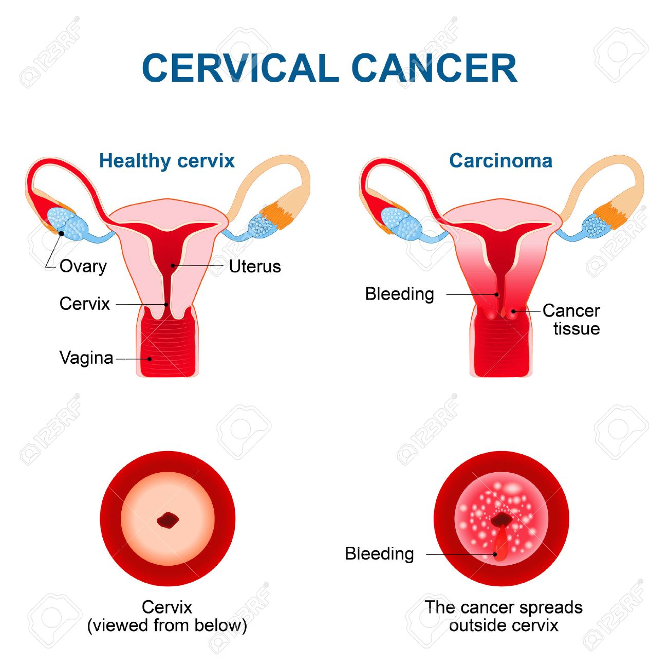 hight resolution of cervical cancer carcinoma of cervix malignant neoplasm arising from cells in the cervix uteri