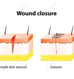 vector wound healing process with help surgical suture series of stitches made to secure apposition of the edges of a surgical or traumatic wound [ 1300 x 1029 Pixel ]