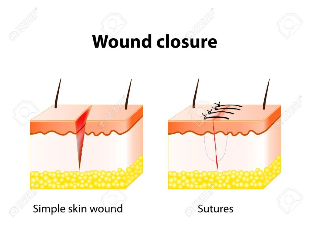 medium resolution of vector wound healing process with help surgical suture series of stitches made to secure apposition of the edges of a surgical or traumatic wound