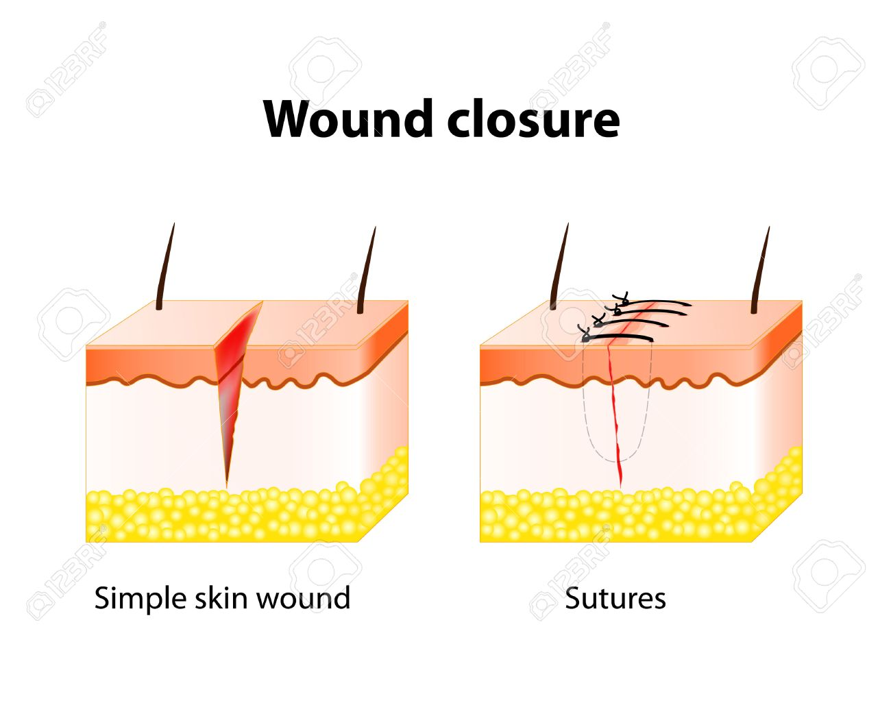 hight resolution of vector wound healing process with help surgical suture series of stitches made to secure apposition of the edges of a surgical or traumatic wound