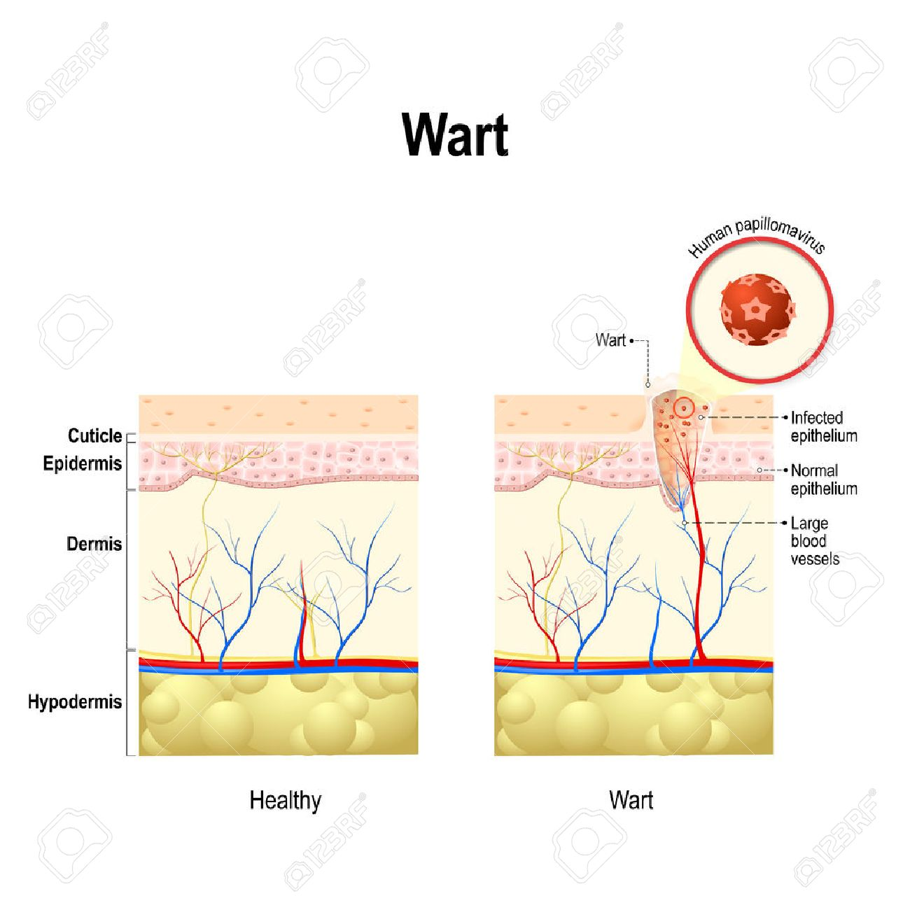 hight resolution of vector wart cross section of the human skin with human papillomavirus infection hpv is a virus which causes warts and cervical cancer