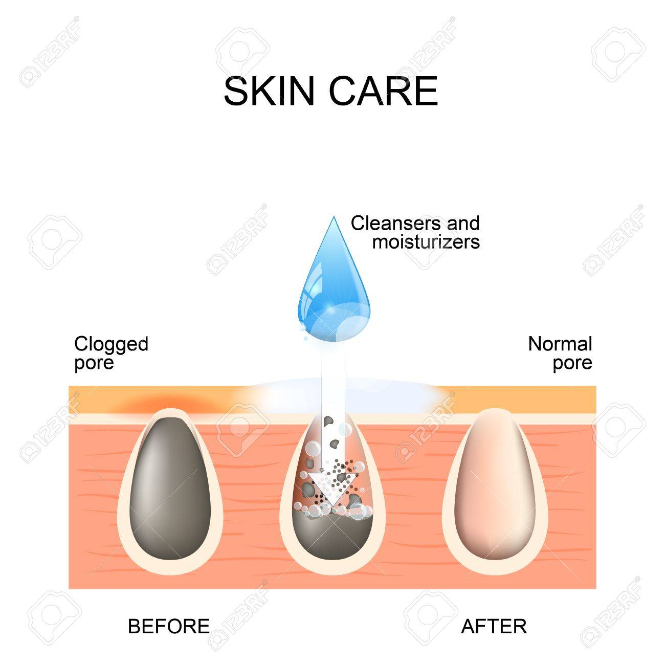hight resolution of skin care clogged and normal pores before and after using scrubs blackhead diagram clogged and normal