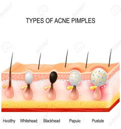 healthy skin whiteheads and blackheads papules and pustules stock [ 1300 x 1300 Pixel ]