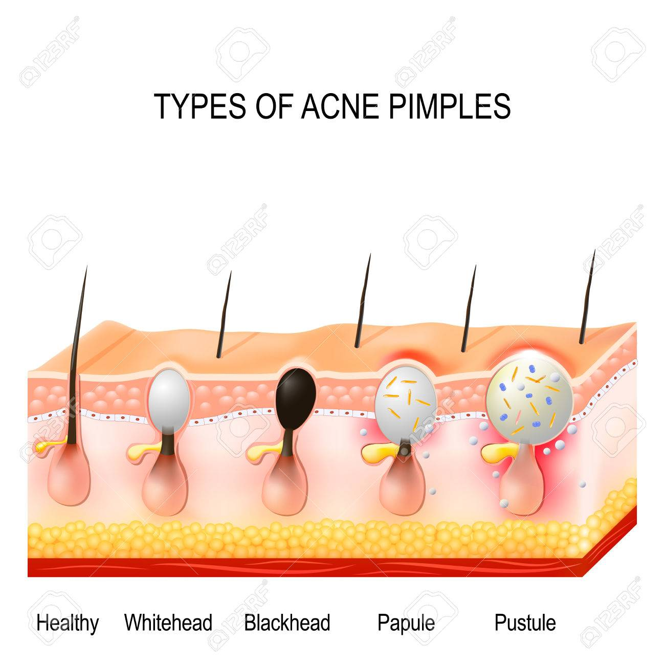 hight resolution of healthy skin whiteheads and blackheads papules and pustules stock