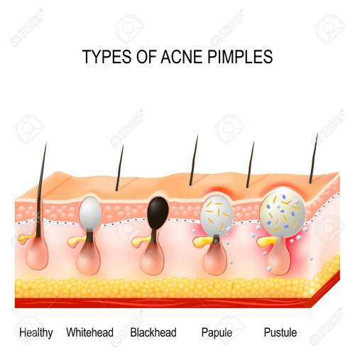 small resolution of healthy skin whiteheads and blackheads papules and pustules stock