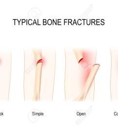 typical bone fractures greenstick simple open comminuted vector scheme stock vector [ 1300 x 914 Pixel ]