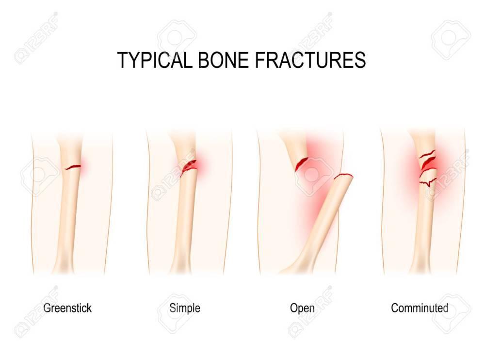 medium resolution of typical bone fractures greenstick simple open comminuted vector scheme stock vector