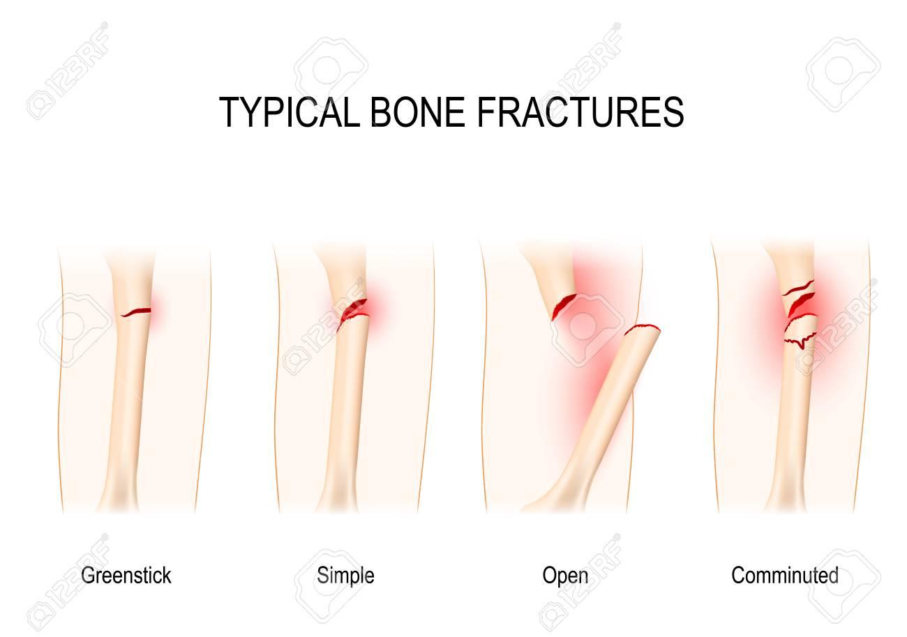hight resolution of typical bone fractures greenstick simple open comminuted vector scheme stock vector