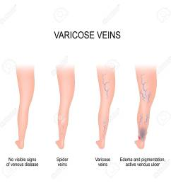 stages of varicose from no visible signs of venous disease to spider veins edema [ 1300 x 1300 Pixel ]
