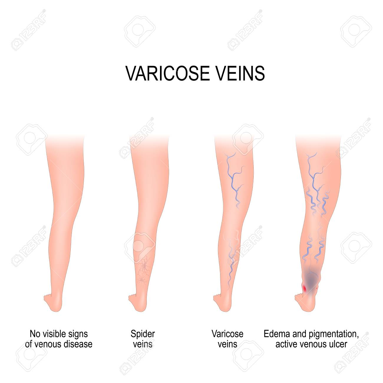 hight resolution of stages of varicose from no visible signs of venous disease to spider veins edema