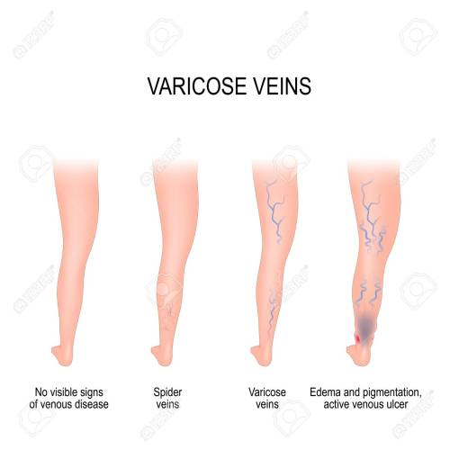 small resolution of stages of varicose from no visible signs of venous disease to spider veins edema
