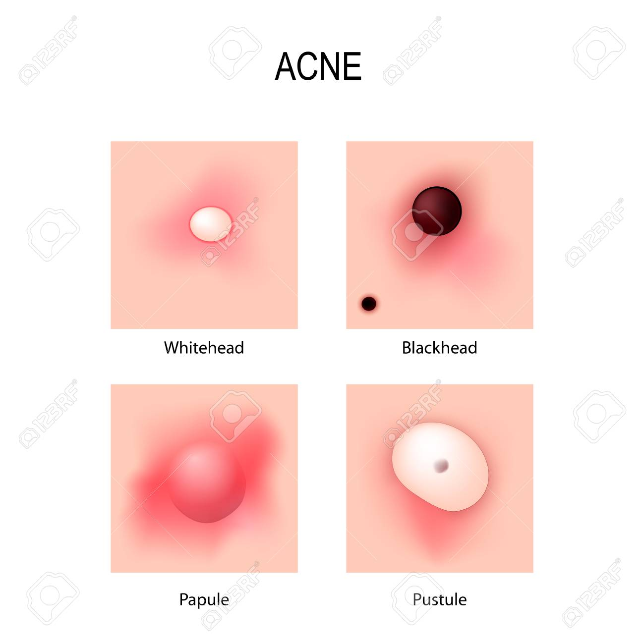 hight resolution of acne vulgaris stages of development types of pimples schematic view of skin problems