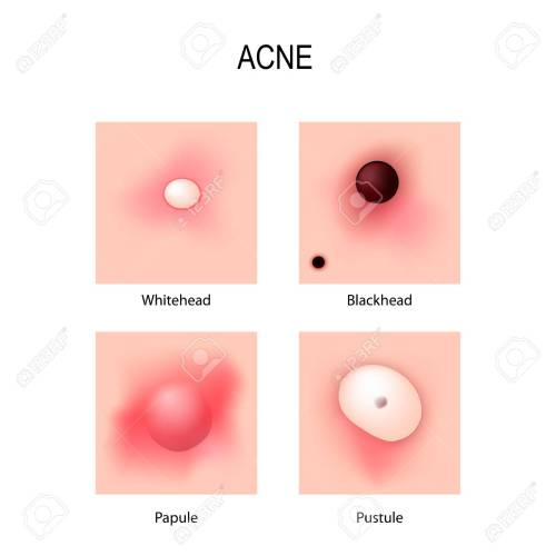 small resolution of acne vulgaris stages of development types of pimples schematic view of skin problems