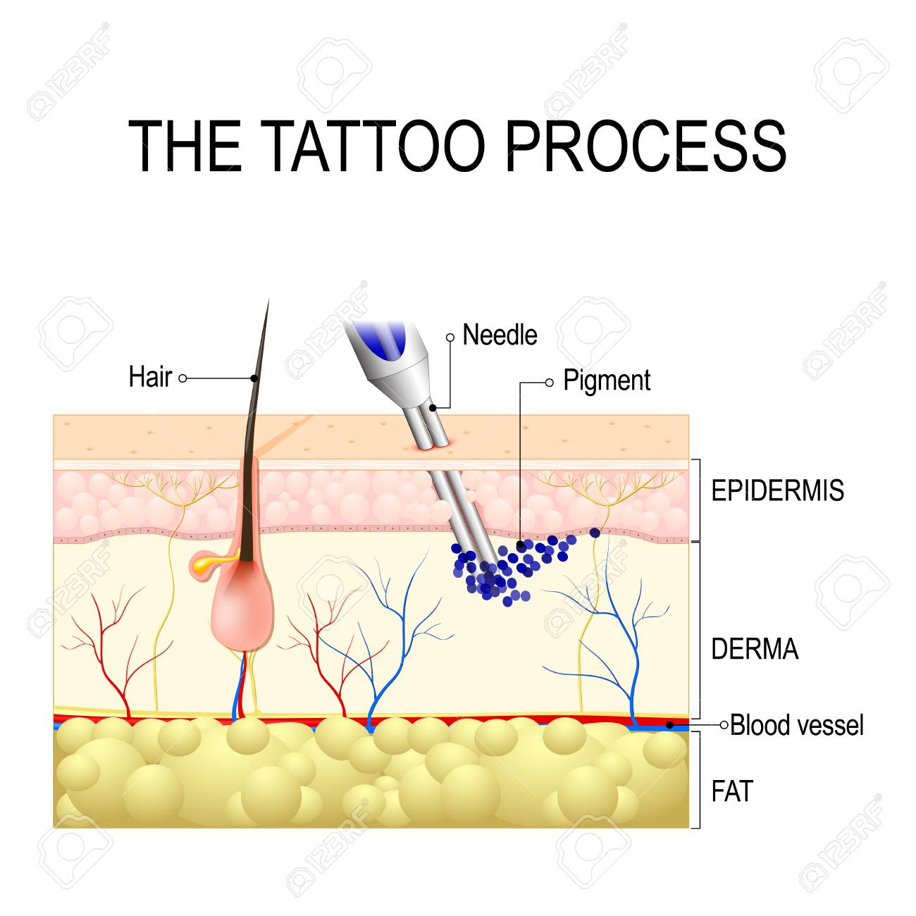 hight resolution of make a tattoo how does it work tattooing process close up stock vector