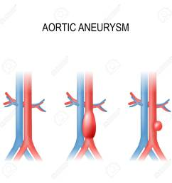 types of abdominal aortic aneurysm normal aorta and enlarged vessels vector diagram  [ 1300 x 1300 Pixel ]