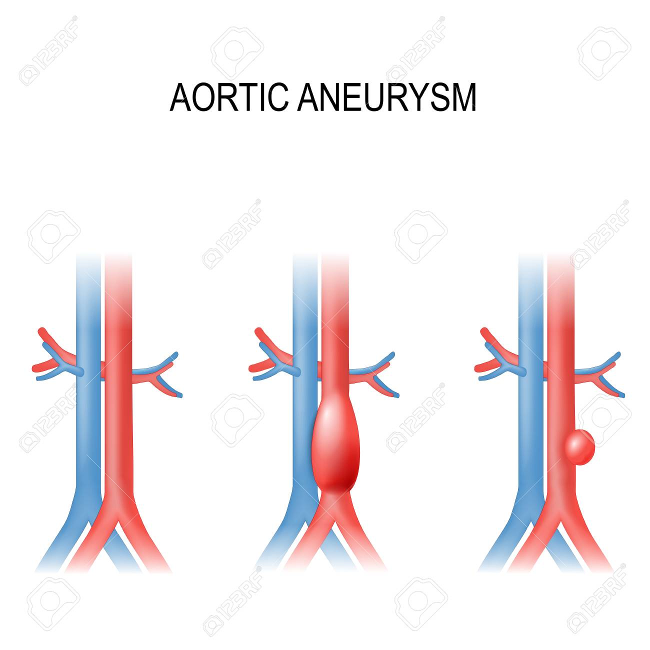 hight resolution of types of abdominal aortic aneurysm normal aorta and enlarged vessels vector diagram