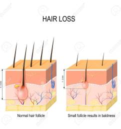 alopecia skin diagram wiring diagram for you alopecia skin diagram [ 1299 x 1300 Pixel ]