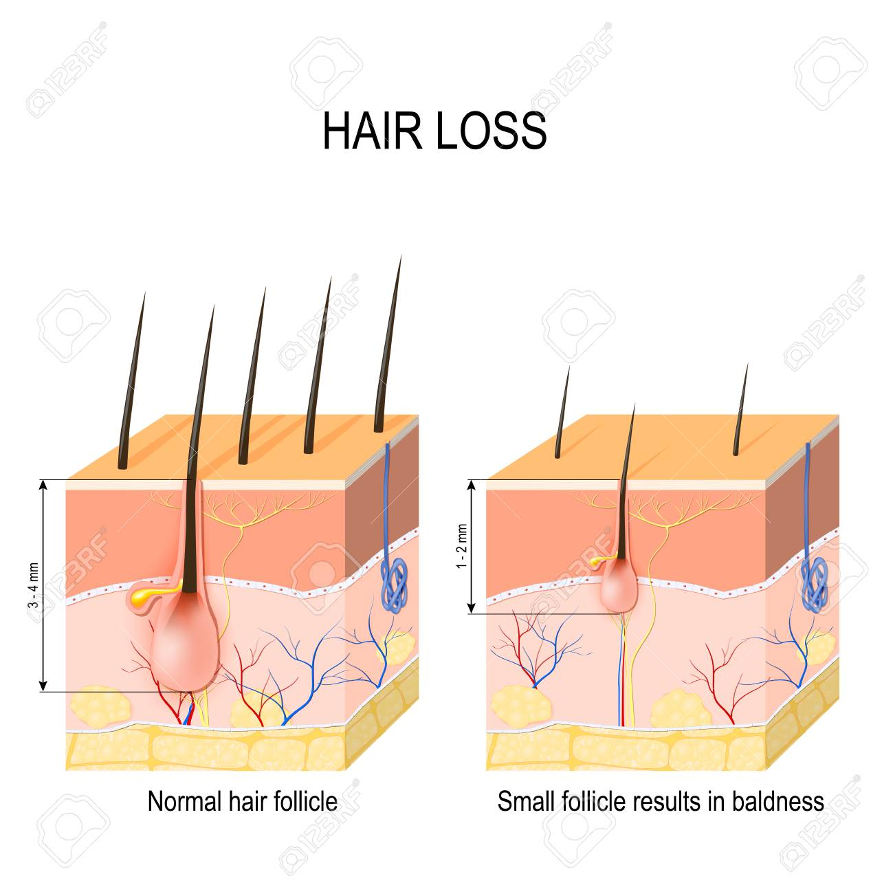hight resolution of hair loss baldness normal hair follicle and skin with alopecia alopecia skin diagram