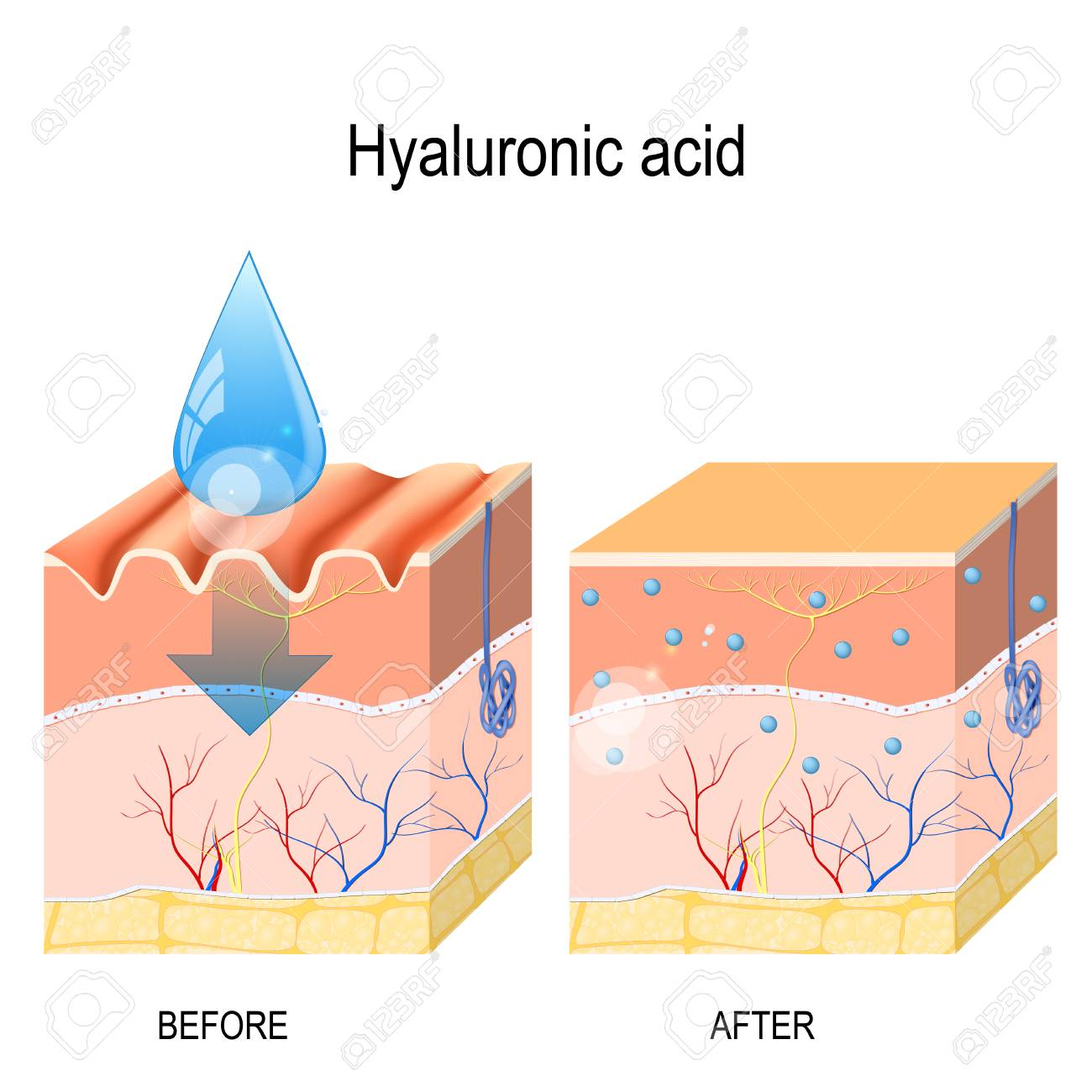 hight resolution of hyaluronic acid skin care products skin rejuvenation with help of hyaluronic acid stock