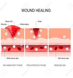wound healing process hemostasis inflammatory proliferative maturation and remodeling tissue injury [ 1300 x 1299 Pixel ]
