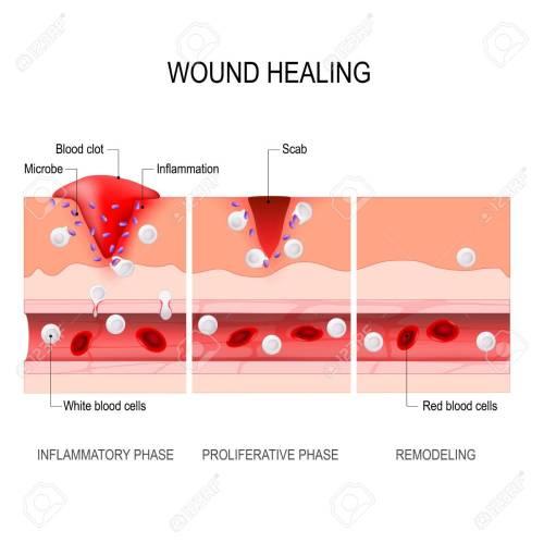 small resolution of wound healing process hemostasis inflammatory proliferative maturation and remodeling tissue injury