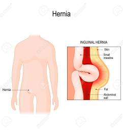 inguinal hernia bowel exit through the wall of the abdomen cavity vector diagram for [ 1300 x 1300 Pixel ]