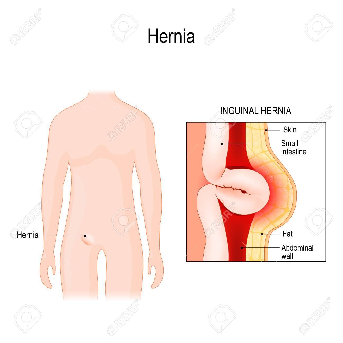 hight resolution of inguinal hernia bowel exit through the wall of the abdomen cavity vector diagram for