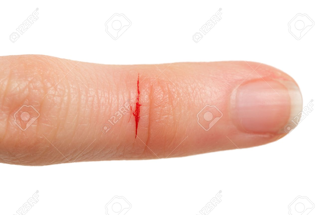 cut finger with blood