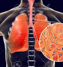 stock photo whooping cough bacteria bordetella pertussis in human airways [ 1300 x 866 Pixel ]