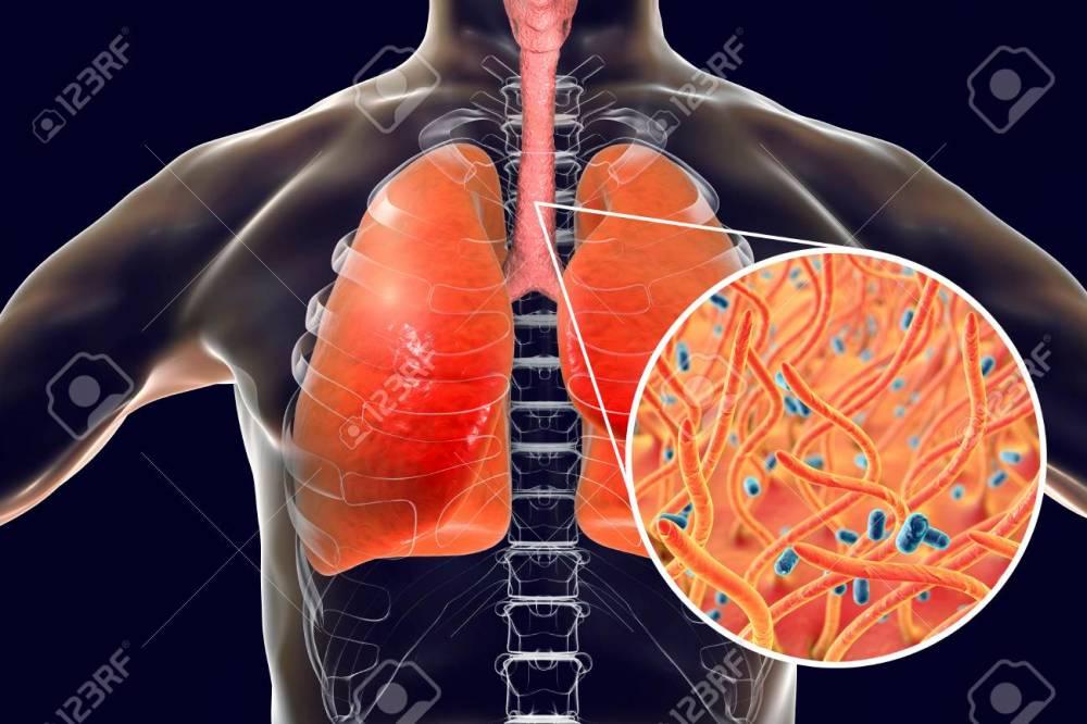 medium resolution of stock photo whooping cough bacteria bordetella pertussis in human airways