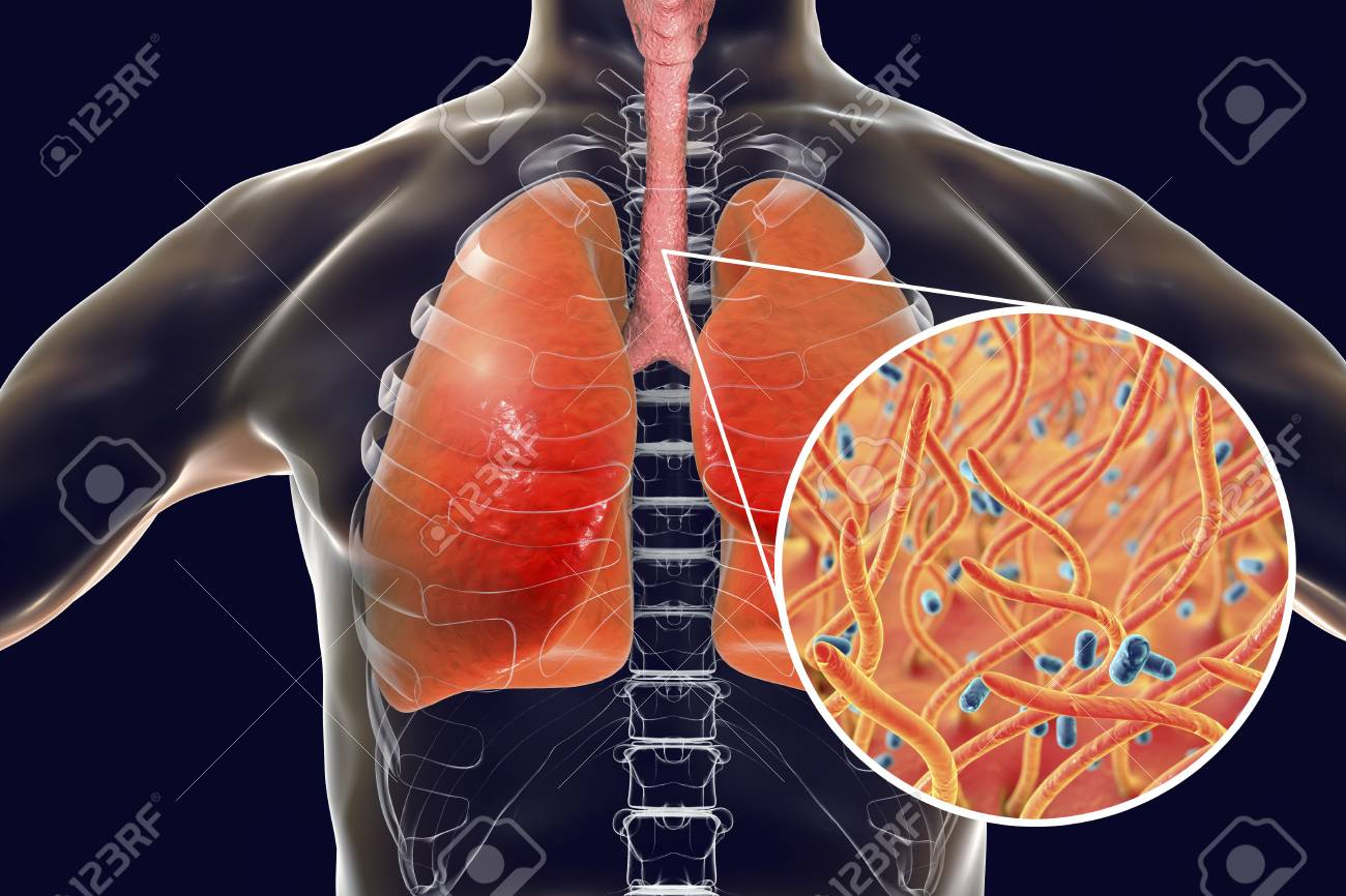 hight resolution of stock photo whooping cough bacteria bordetella pertussis in human airways