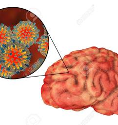 illustration measles induced encephalitis medical concept 3d illustration showing brain infection and close up view of measles viruses [ 1300 x 866 Pixel ]