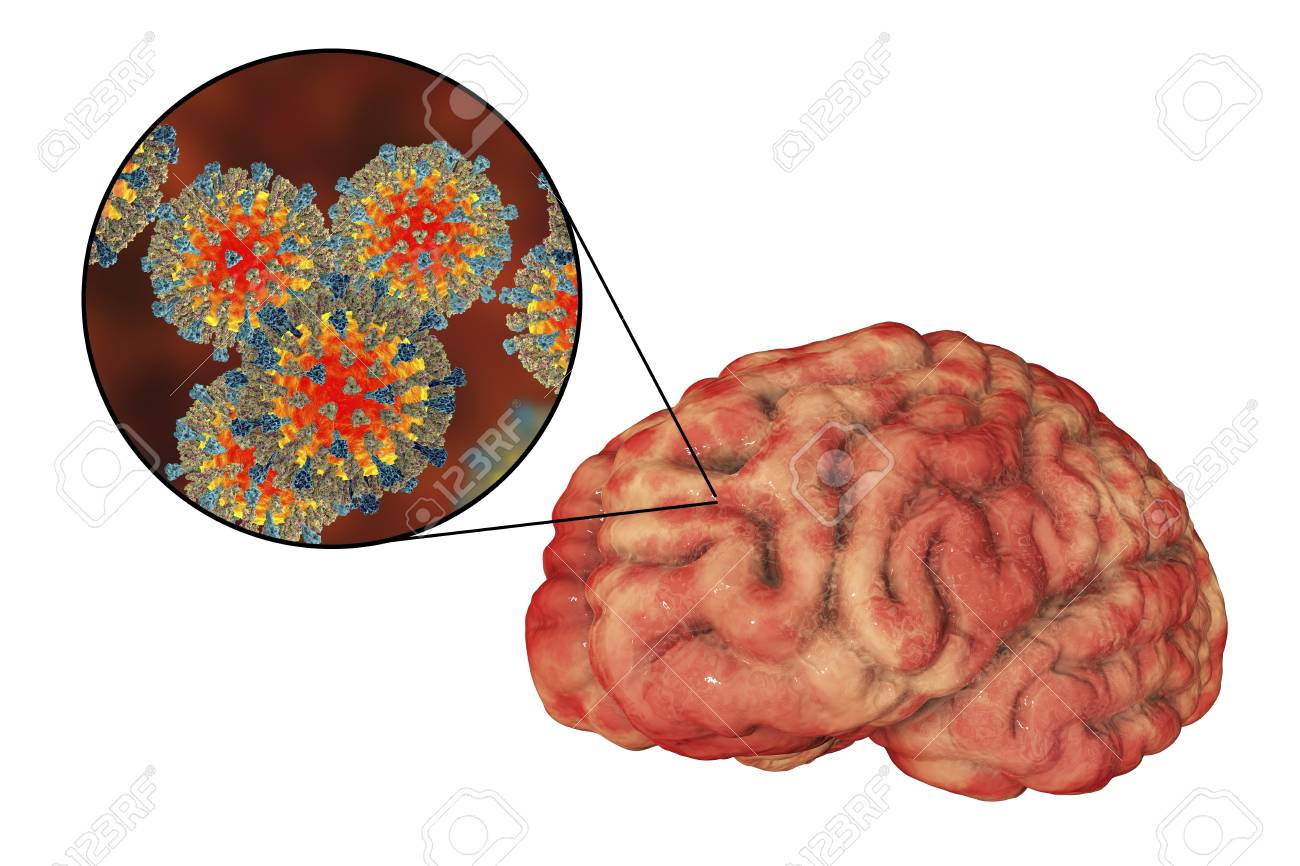 hight resolution of illustration measles induced encephalitis medical concept 3d illustration showing brain infection and close up view of measles viruses
