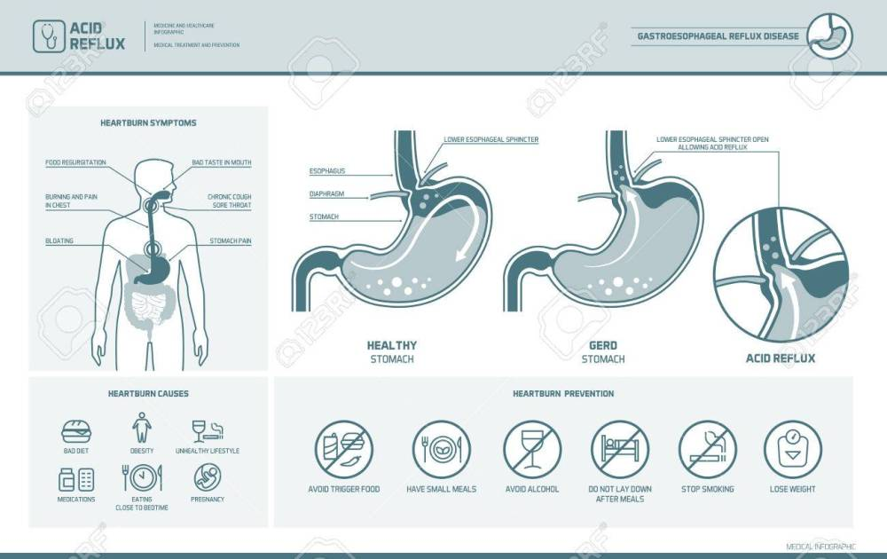 medium resolution of acid reflux heartburn and gerd infographic with stomach medical illustration symptoms causes and
