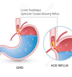 gastroesophageal reflux disease gerd acid reflux heartburn and gerd infographic with stomach [ 1300 x 1040 Pixel ]