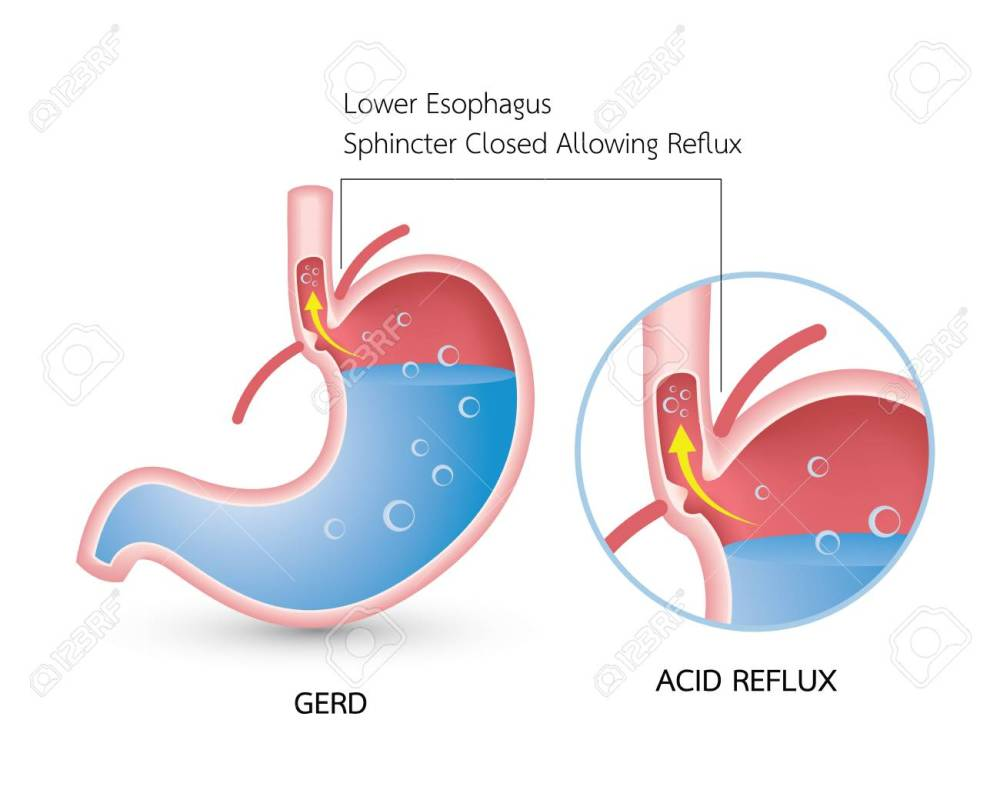 medium resolution of gastroesophageal reflux disease gerd acid reflux heartburn and gerd infographic with stomach