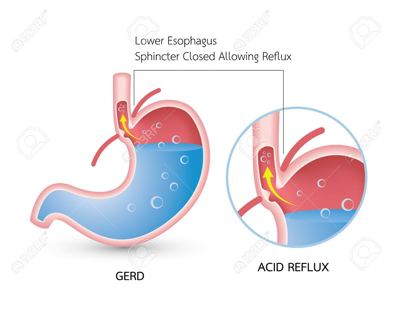 hight resolution of gastroesophageal reflux disease gerd acid reflux heartburn and gerd infographic with stomach