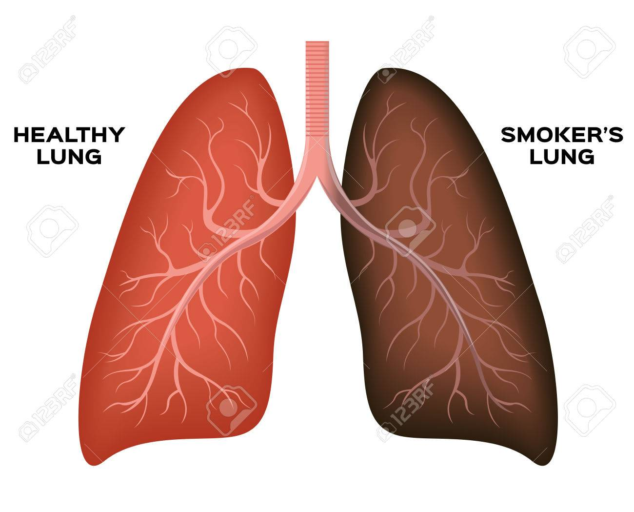 normal lung smoker s