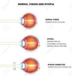 myopia and normal vision myopia is being shortsighted myopia corrected with minus lens  [ 1198 x 1300 Pixel ]